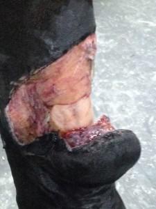 retrait-premier-bandage