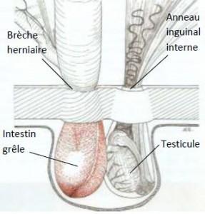 Schéma 3 : hernie inguinale directe chez le cheval : l'anse intestinale passe à travers une brèche du péritoine et ne concerne pas la vaginale (Gluntz, 2007)