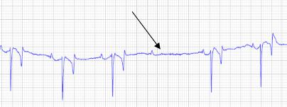 Exemple de bloc atrio-ventriculaire de second degrés (De Lagarde, 2007)