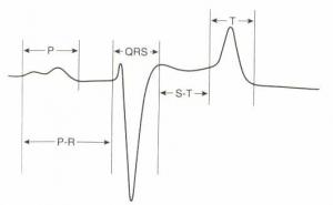 Aspect caractéristique de l'ECG en dérivation base-apex chez le cheval (Colin, 2005)