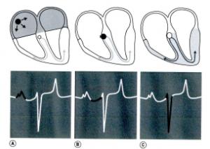 Schémas et tracés électrocardiographiques représentatifs de la conduction électrique au sein du myocarde (Perez, 2011) (A) conduction initiée au nœud sinusal représentée par l'onde P ; (B) relai de la conduction au nœud atrio-ventriculaire représenté par l'intervalle [P-R] ; (C) onde de dépolarisation rapide au travers du faisceau de His et réseau de Purkinje représentée par le complexe QRS.